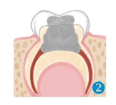 Odontopediatría 2