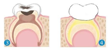 Odontopediatría 3-4